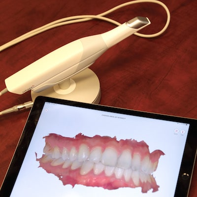 Our Trios scanner and an iPad, which shows the images captured by your family dentist in Fargo, Dr. Vetter